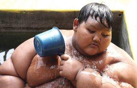 विश्वकै मोटो बालक आर्याको तौल दश वर्षमा १९२ किलो कसरी भयो